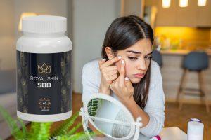 royal skin 500 opinioni